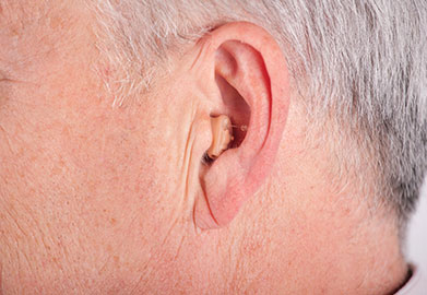 Completely-in-Canal (CIC) Hearing Aids